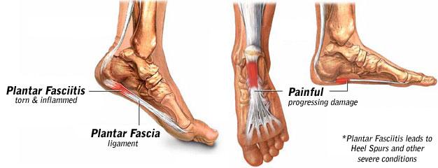 image showing plantar fasciitis
