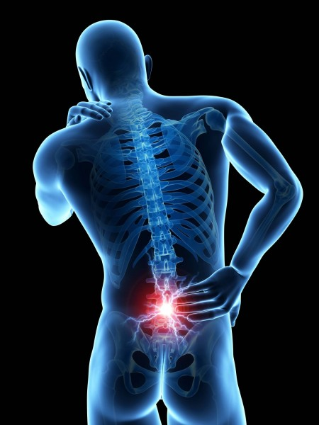 back pain specialist gold coast