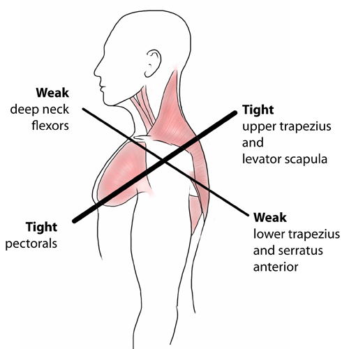 Upper Cross Syndrome Poor Posture Explained Symptoms